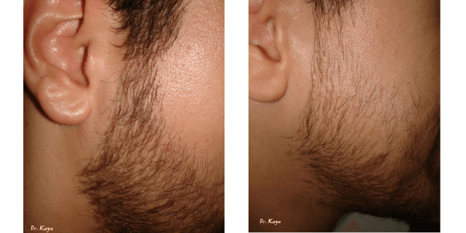 sakal sıklaştırma