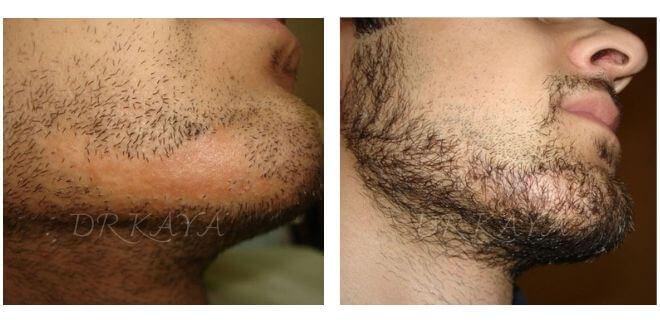 yanık izine sakal ekimi